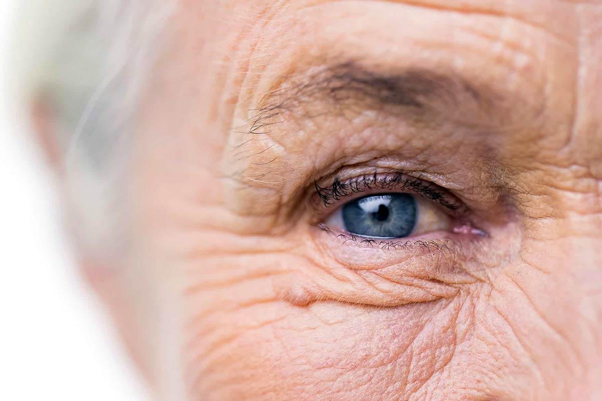 Diabetes im Erwachsenenalter – Fünf statt zwei verschiedene Formen – Heilpraxis